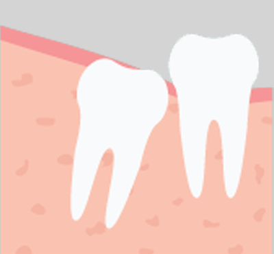 Wisdom Teeth in Oklahoma City, OK