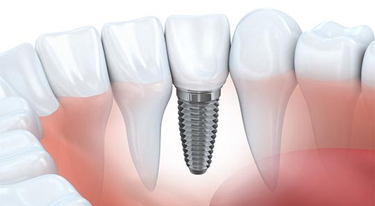 Dental Implants in Oklahoma City, OK