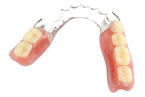 Partial Denture image